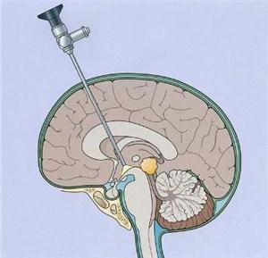 Эндоскопическая нейрохирургия