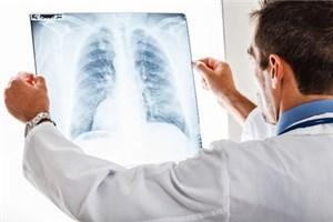 Пульмонология: диагностика и лечение заболеваний дыхательный путей и органов дыхания