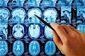 Технологии диагностики в неврологии