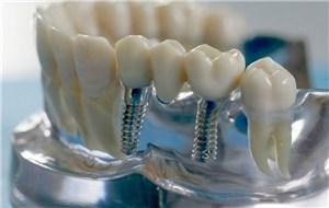 Технологии имплантации в стоматологии