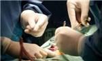 Предложена новая технология хранения печени для трансплантации