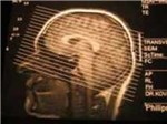 SRS-микроскопия улучшит диагностику опухолей мозга