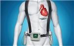 Ученые испытали переносную аппаратуру для искусственного сердца