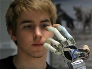 Бионический имплантант рук