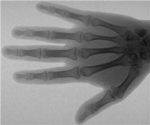 Рентгенологические исследования в России стали безопаснее