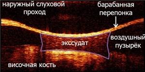 В ИПФ РАН разработали уникальный оптический когерентный томограф