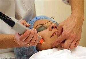 Косметологический лазер